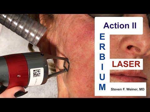 Action II Erbium Laser