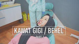 Part. 1 Prosedur Pemasangan Kawat Gigi / Behel - Konsultasi , foto gigi , dan cetak gigi