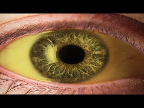 Cara Memutihkan Bola Mata Yang Kuning Secara Alami Youtube
