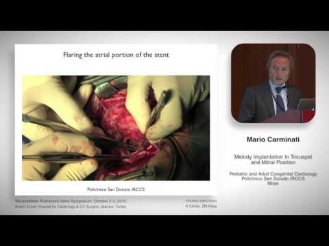 Mario Carminati - Melody valve in tricuspid and mitral position