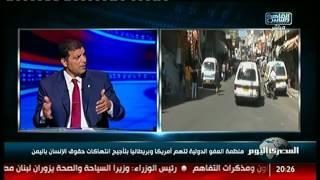 منظمة العفو الدولية تتهم أمريكا وبريطانيا بتأجيج انتهاكات حقوق الإنسان باليمن