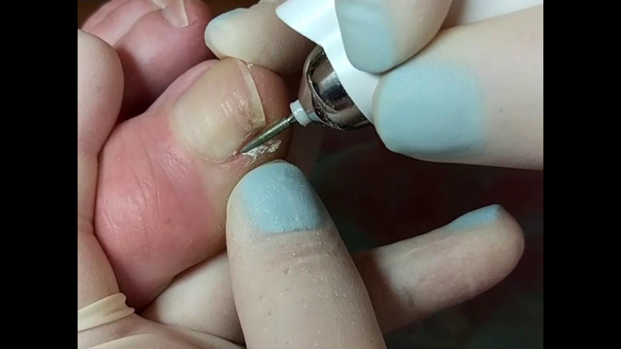 Аппарпатный педикюр. Обработка боковых валиков