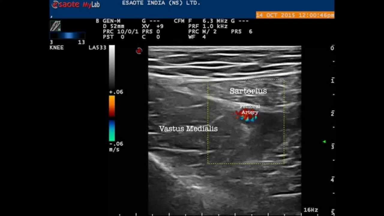 Ultrasound guided Saphenous Nerve Block - YouTube