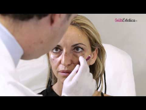 COME APPLICARE E RIMUOVERE LE LENTI A CONTATTO / how to put in CONTACT lenses from YouTube · Duration:  6 minutes 11 seconds