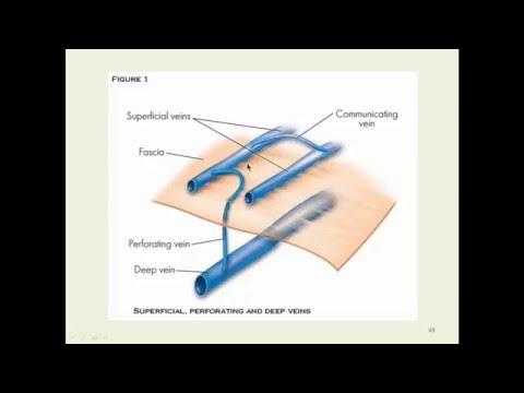 Deep Venous System Anatomy & Chronic Venous Insufficiency