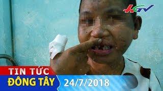 Xót xa quá trình bị bạo hành ở Gia Lai   TIN TỨC ĐÔNG TÂY - 24/7/2018