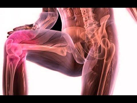 лечение артрита суставов народными средствами в домашних условиях