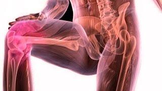 видео Лечение артрита народными средствами в домашних условиях