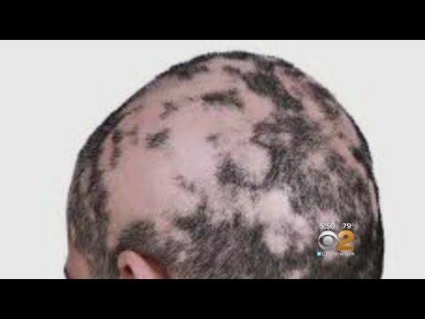 Dr. Max Gomez: Alopecia Treatment