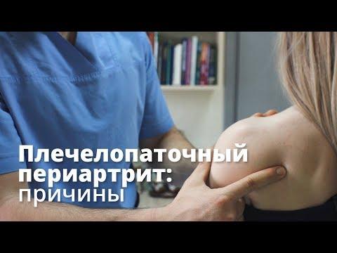 Причины плечелопаточного периартрита