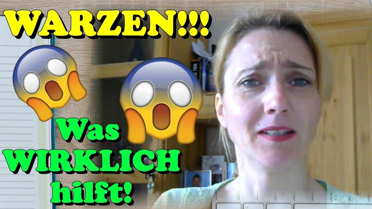 Download WARZEN ENTFERNEN - Was WIRKLICH hilft! (Und Ärzte nicht verraten) Hausmittel | Schmerzfrei | Kinder