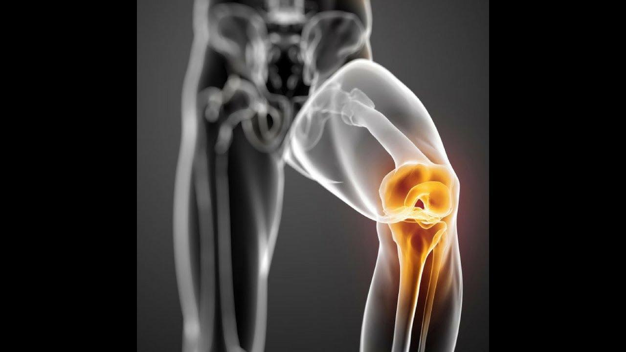 milyen gyógyszereket kell bevenni a csípőízület osteoarthritiszével