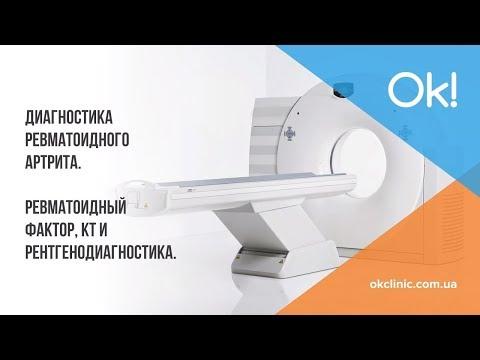 Диагностика ревматоидного артрита. Ревматоидный фактор, КТ и ренгенодиагностика