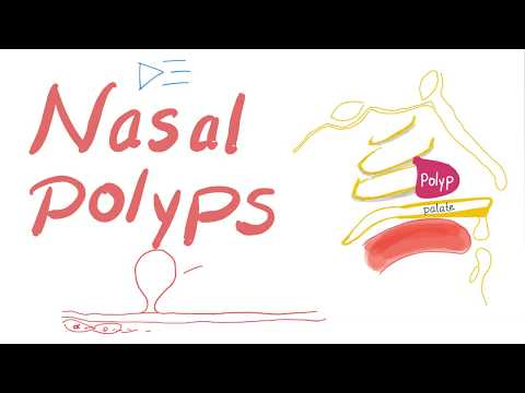 Nasal Polyps (Allergic Rhinitis and Cystic Fibrosis)