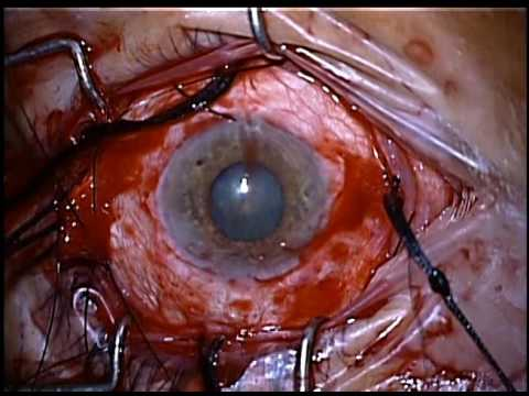 Scleral Buckle Surgery for Retinal Detachment