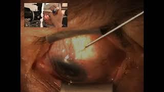 TRIBUN-VIDEO.COM - Astigmatisme merupakan gangguan penglihatan yang disebabkan oleh cacat pada lengk.