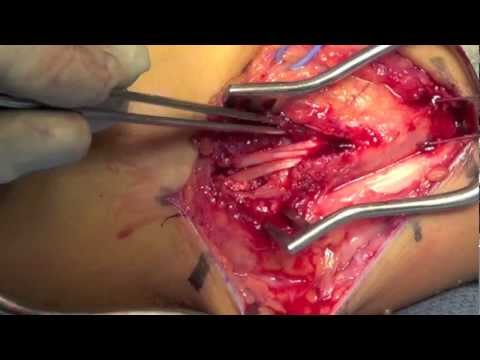 UCL Reconstruction (Tommy John) of the Elbow