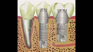Oral parestesia diagnóstico de