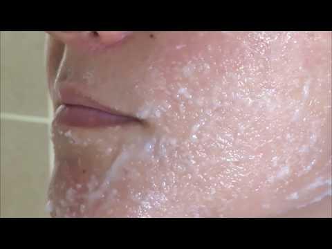 Como Acabar Com Manchas De Melasma Usando Sal De Cozinha Youtube
