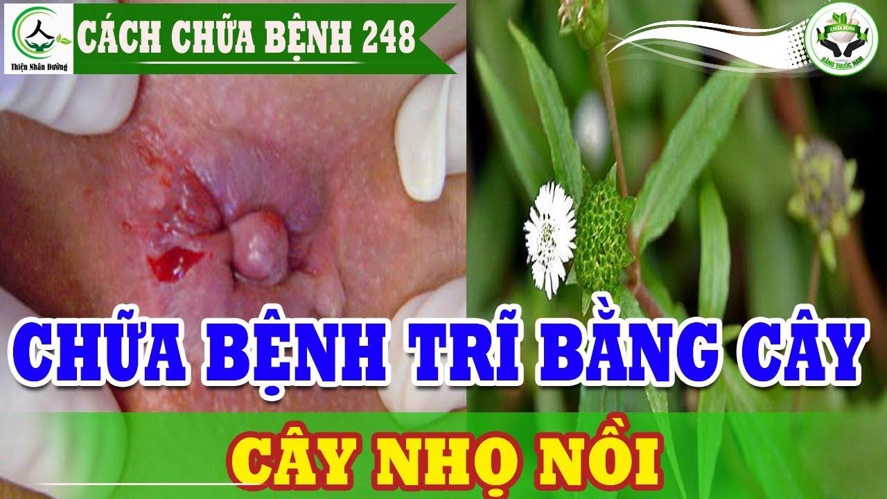 Chữa bệnh trĩ bằng cây nhọ nồi bài thuốc nam chữa bệnh trĩ đến 99% mọi người không biết cách này