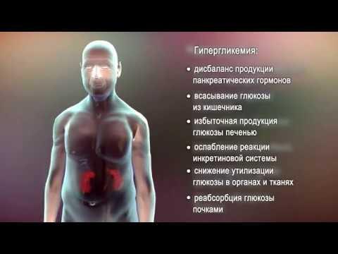 Патогенез сахарного диабета второго типа.