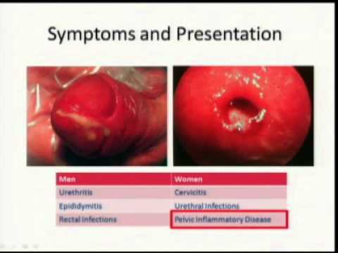 Gonorrhea and the Fading Treatment Frontier: Sexually Transmitted Infections Community Update
