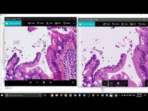 Cancer Detection using AI from Biopsy Images