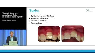Traumatic Dental Injury and Ankylosed Teeth in Relation to Dental Implants | Simon Storgård Jensen