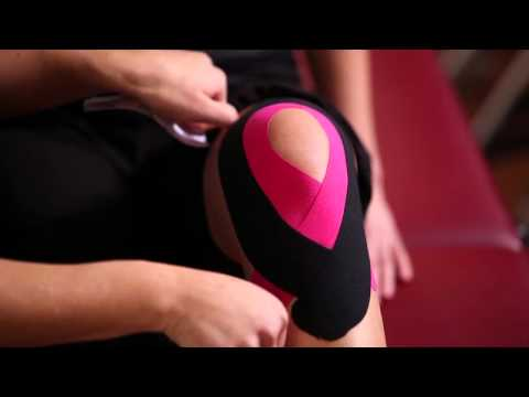 Tejpovanie kolena