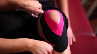 Kinesio Tape, Kinesiologie Tape bei Knieschmerzen (unspezifischer Knieschmerzen)