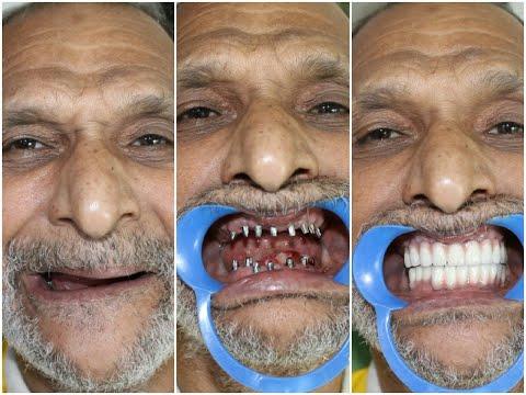 ثورة طبية جديدة في مجال طب الأسنان – زراعة الأسنان الفورية