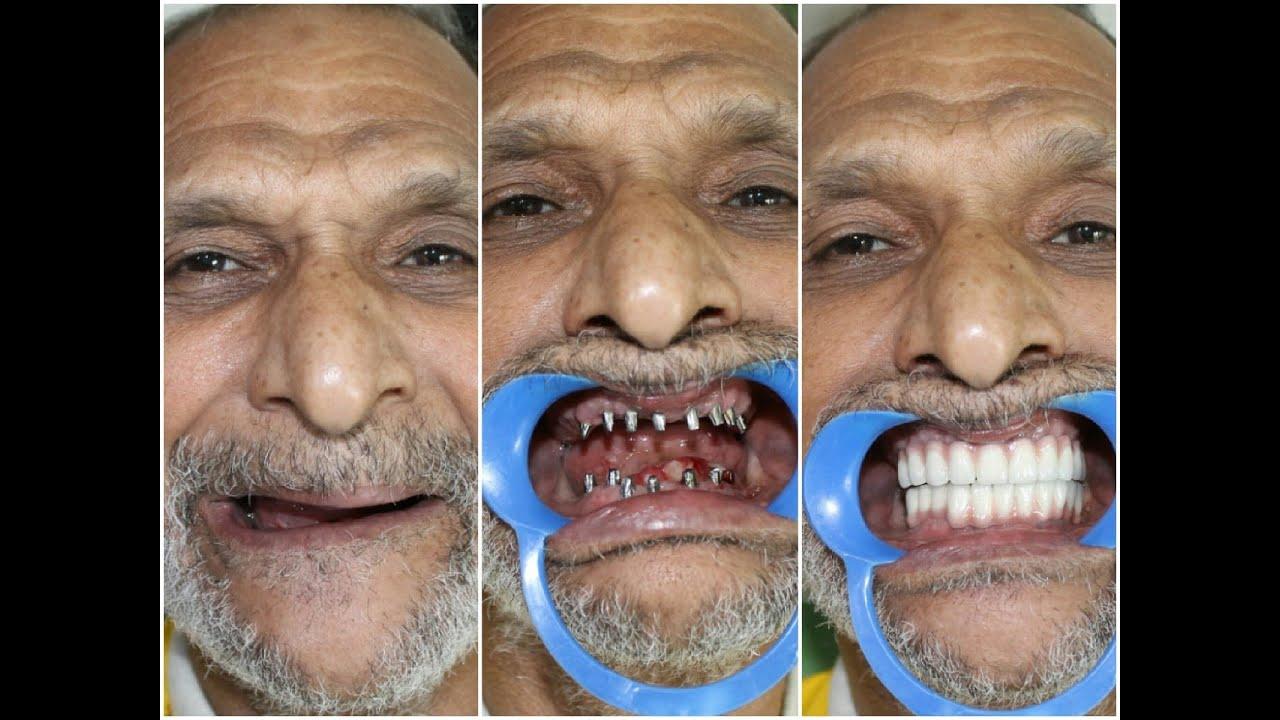 ثورة طبية جديدة في مجال طب الأسنان زراعة الأسنان الفورية Youtube