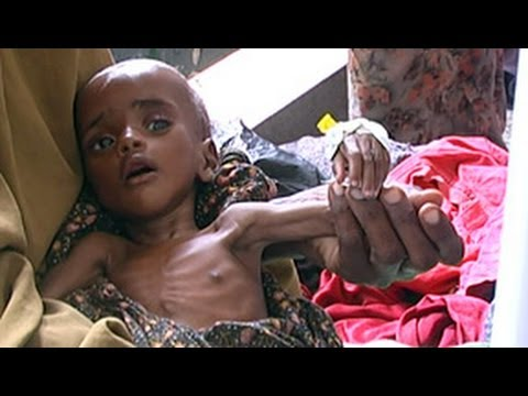 Horn of Africa crisis: Combating cholera in Somalia