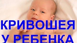 Кривошея у ребенка, детей, у новорожденных - причины, последствия, как лечить(Начинать лечение нужно как можно раньше после установления диагноза. Первое, что должен назначить врач..., 2016-02-28T09:22:40.000Z)