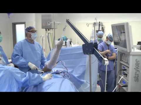 Shoulder Arthroscopy Surgery Youtube