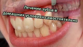 Лечение зубов в домашних условиях самостоятельно
