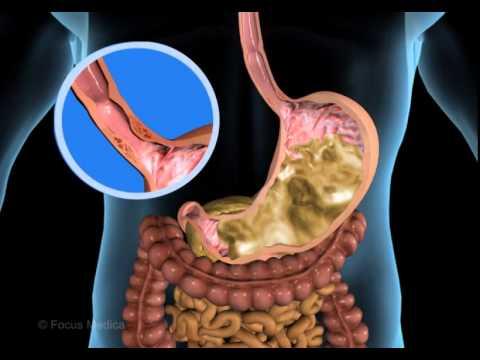 Unser Körper in 3D - Verdauung und Ausscheidung - YouTube