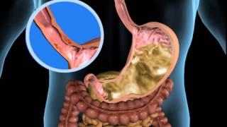 Unser Körper in 3D - Verdauung und Ausscheidung