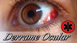 Niño debajo sanguíneo del ojo vaso roto