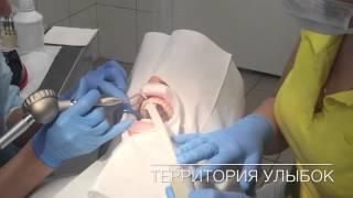 видео Что такое чистка зубов методом air flow и отзывы