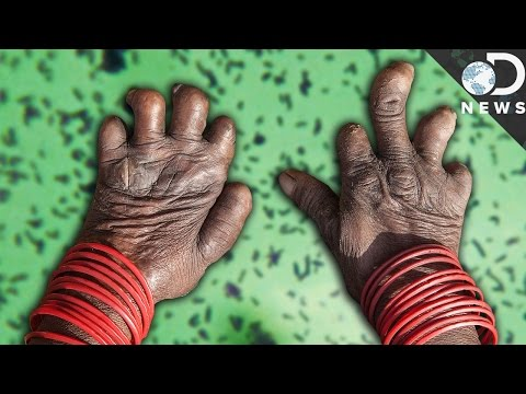 What Happens When You Get Leprosy?