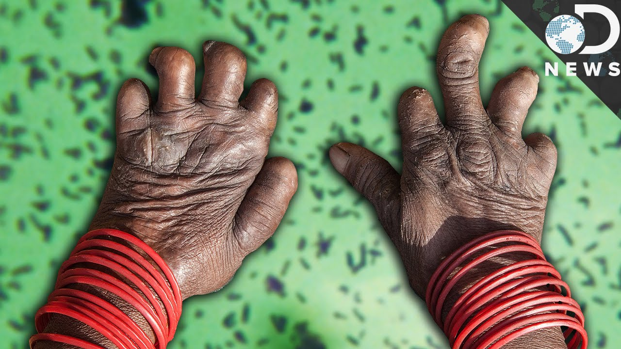 Leprosy Is Not Quite Yet A Disease Of The Past