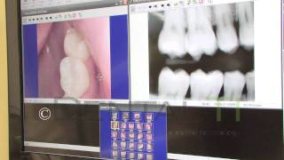 Dental TI: Intra-Oral Camera Images next to X-ray Images
