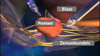 prostaat operatie
