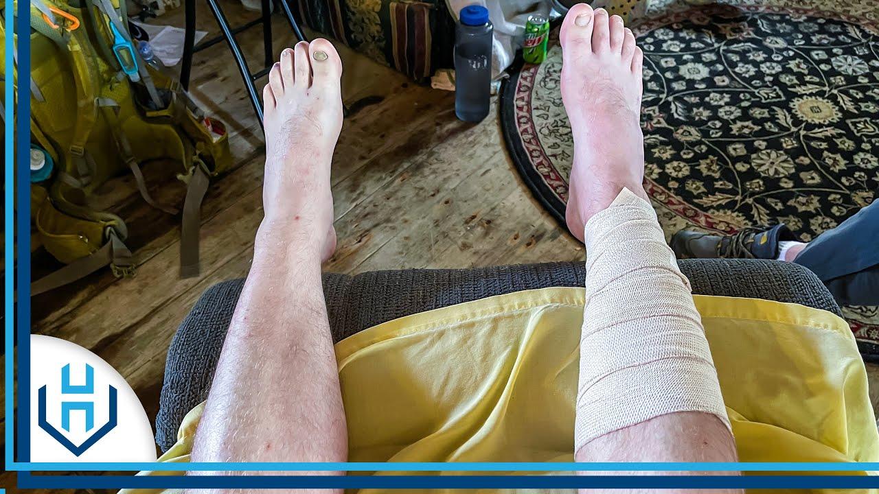 Injured My Leg.. | Appalachian Trail Thru-Hike Day 42