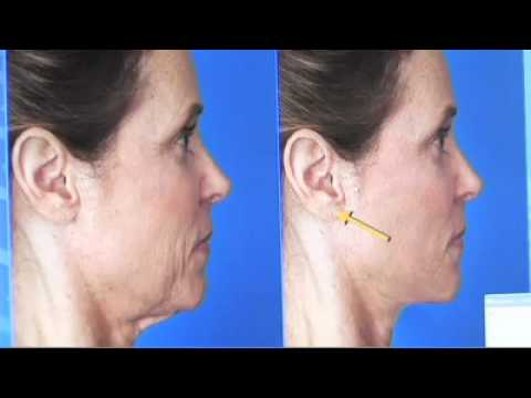 Hiding Facelift Incisions