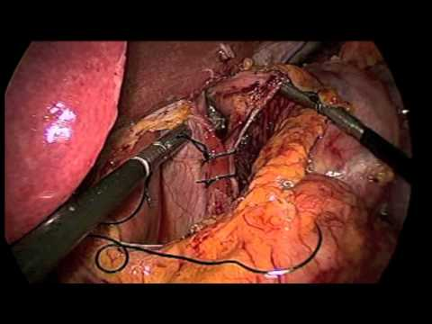 Laparoscopic Revision of Gastric Bypass
