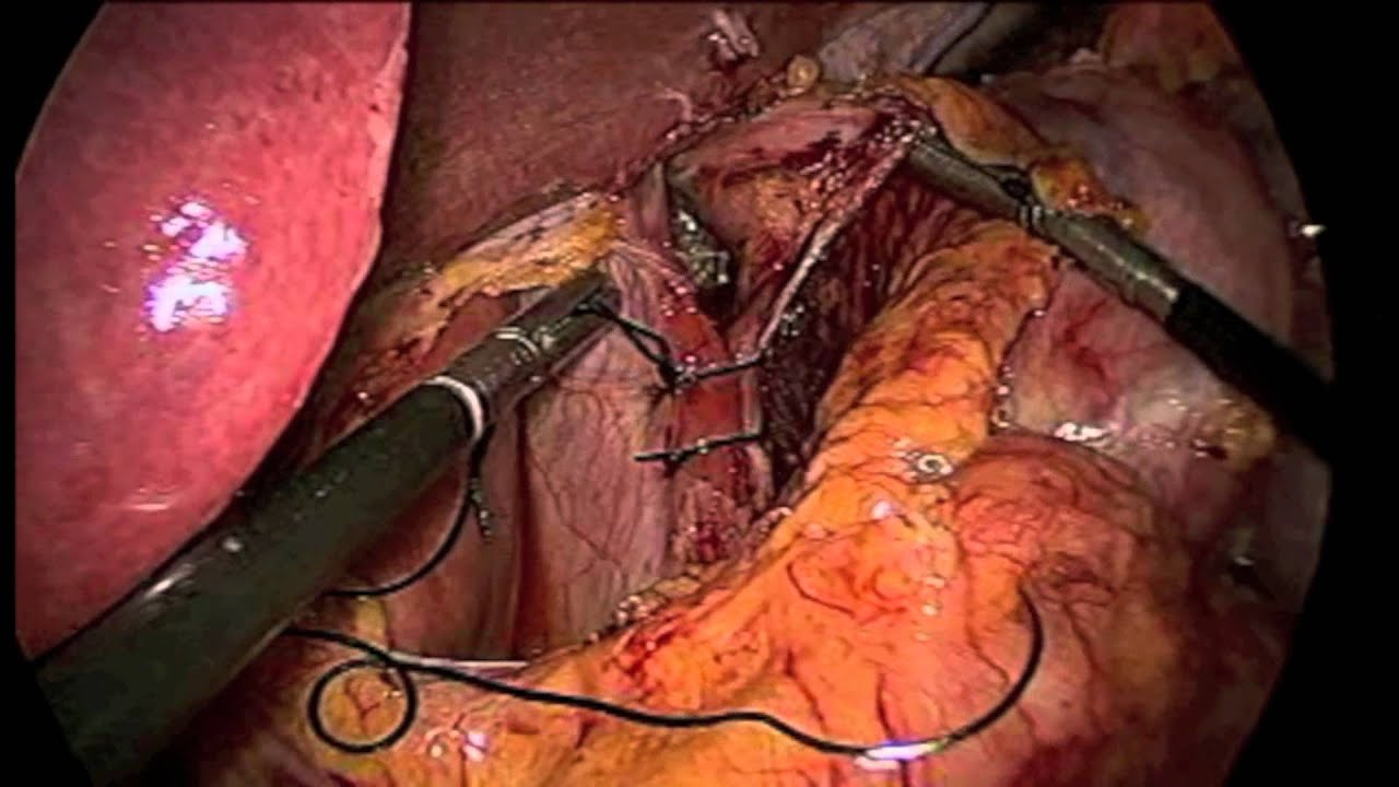 Laparoscopic Revision of Gastric Bypass - YouTube
