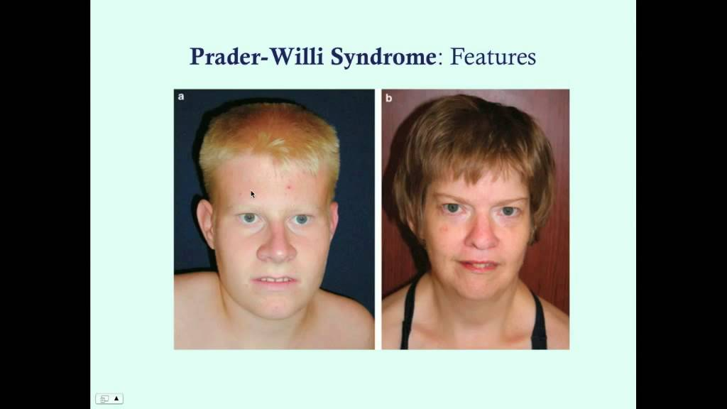 prader willi syndrome essay Prader-willi syndrom prader-willi syndrome is a serious genetic disorder that  begins at birth with no known cure  causing mental retardation,short stature,low.
