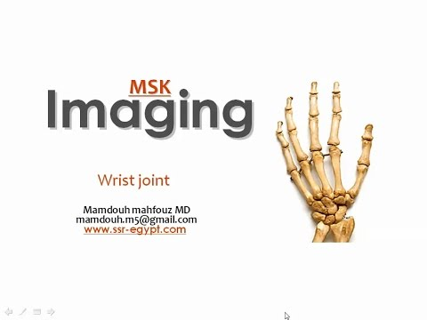 Imaging of the Wrist joint -DRE 4 - Dr Mamdouh Mahfouz
